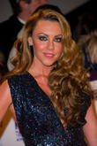 Michelle Heaton Damages Nerves In Scalding Accident